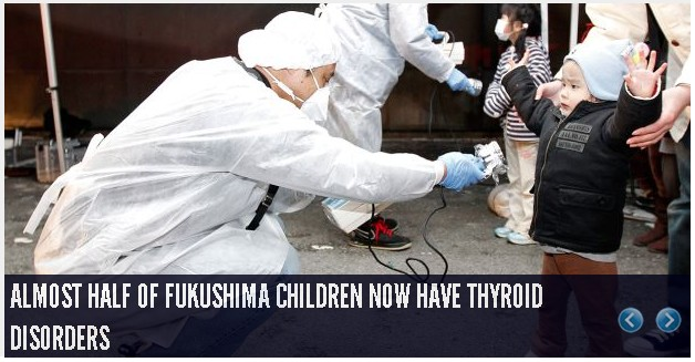 over 40 percent of fukushima children have thyroid disorders